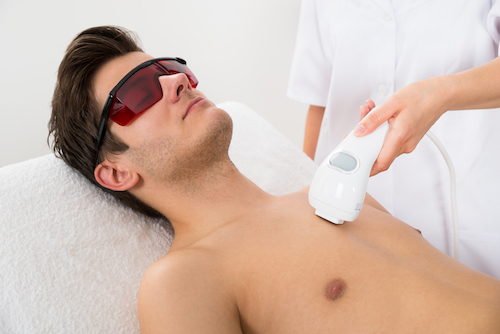 intense-pulsed-light-hair-removal
